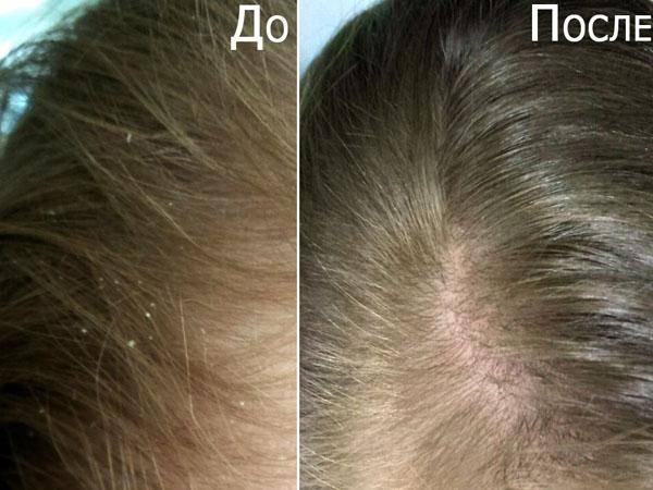 Ополаскивать волосы уксусом после мытья: какой эффект?