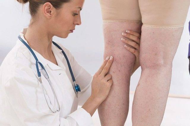 Правильное лечение варикоза ног с помощью яблочного уксуса