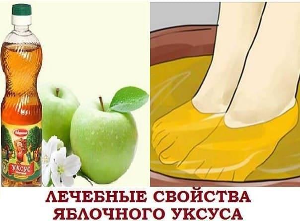 Яблочный укус при варикозе