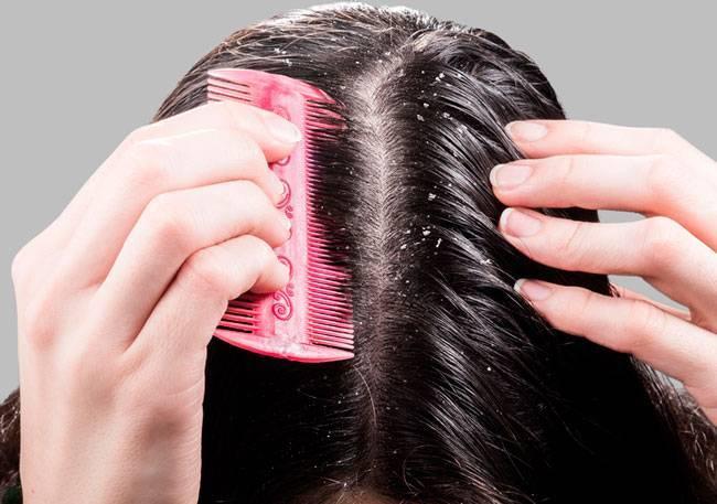 Чем полезен яблочный уксус для волос?