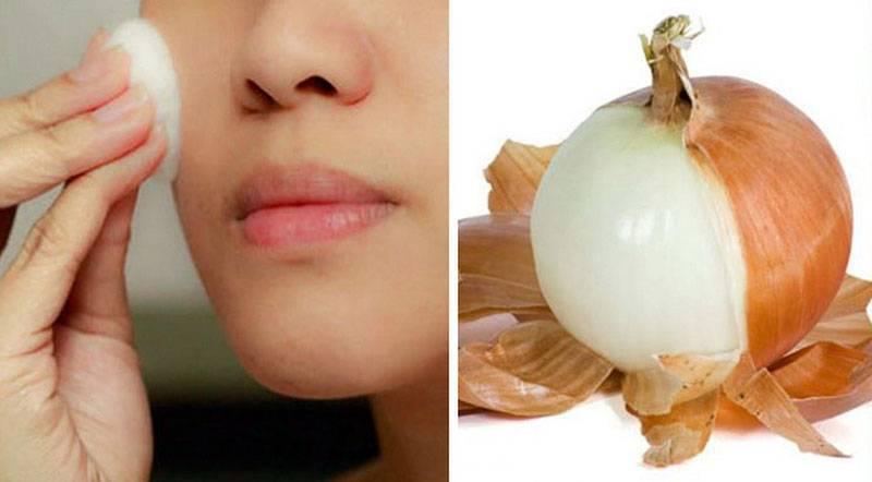 Луковая шелуха для лечения простатита