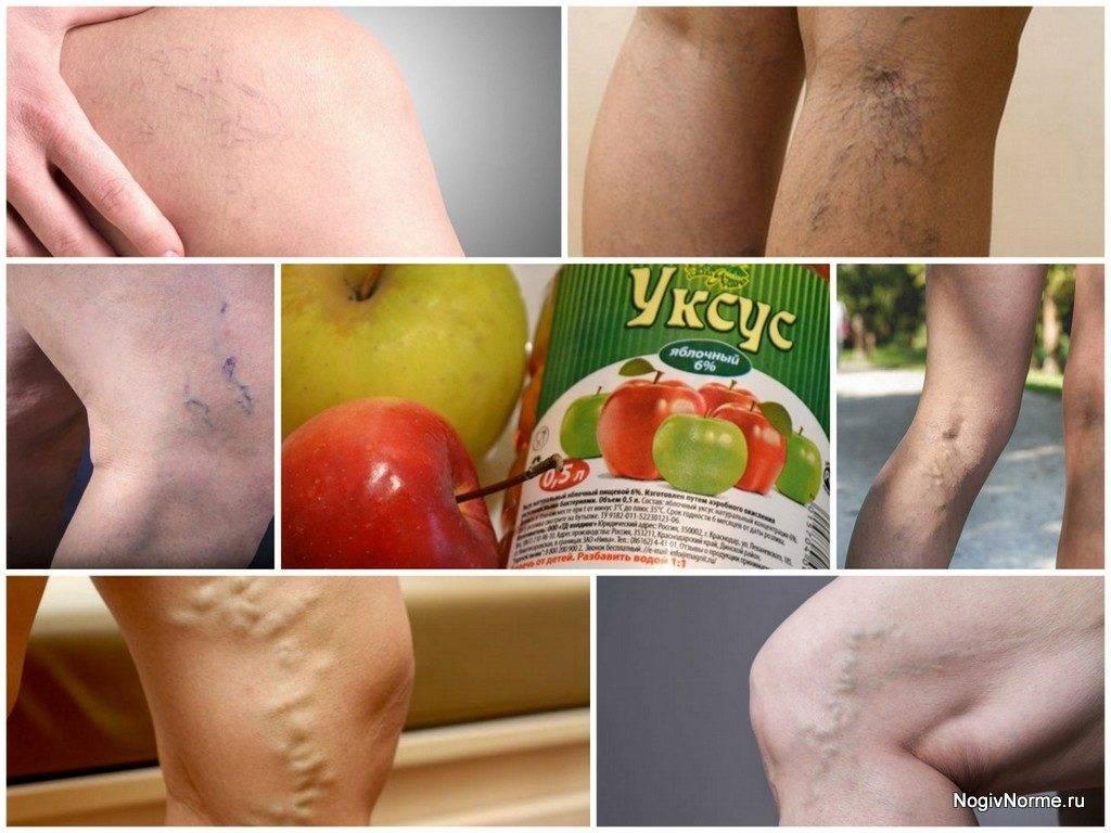 Яблочный уксус от варикоза на ногах: как использовать, есть ли польза?