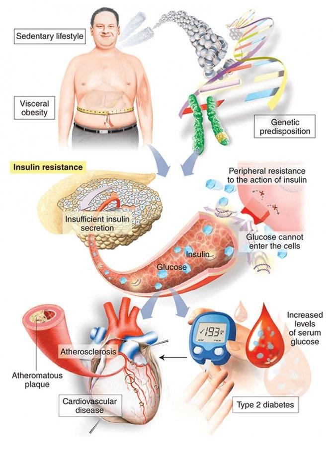 Лечение сахарного диабета створками фасоли