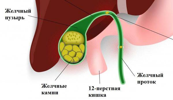 Симптомы и лечение отравления арбузом у ребенка. отравление арбузом – симптомы, их многообразие и выраженность. неотложная помощь и эффективное лечение при отравлении арбузом