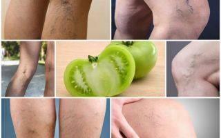 Как лечить варикоз яблочным уксусом?